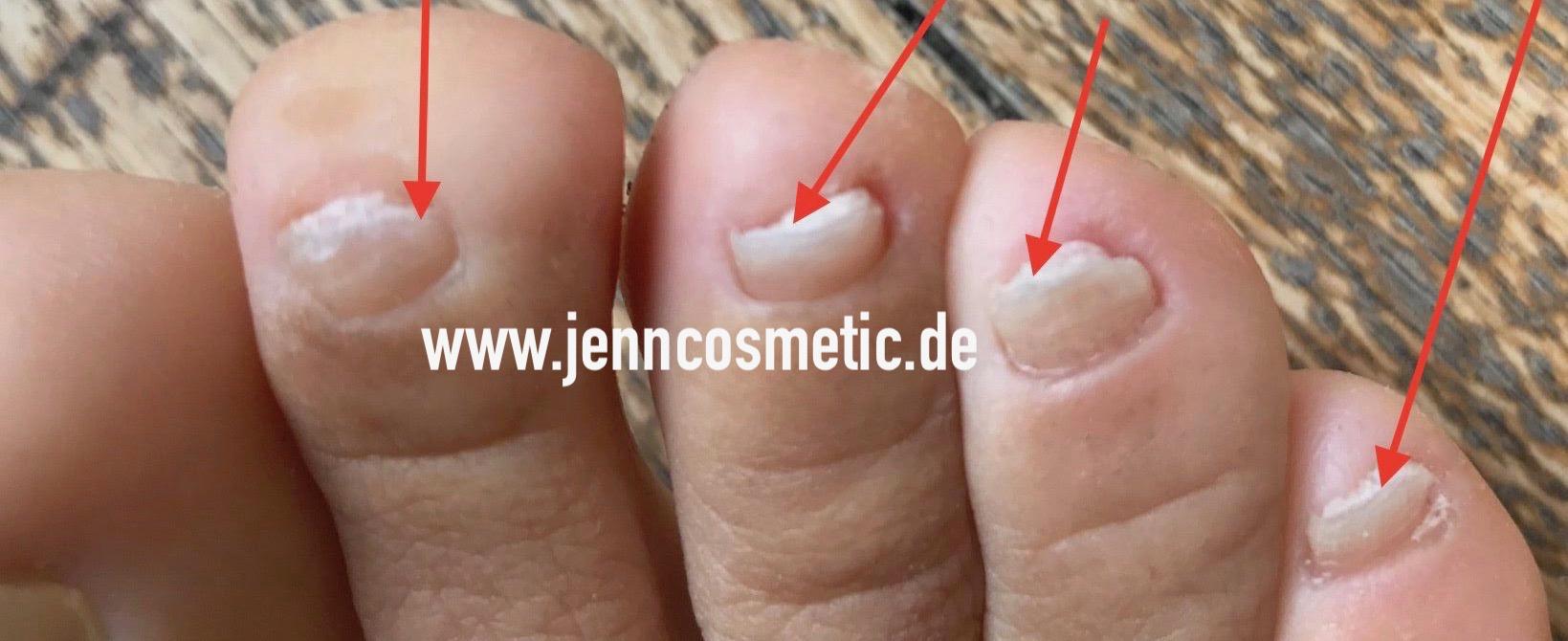fußnagel-krankheiten-bilder-jenncosmetic-8