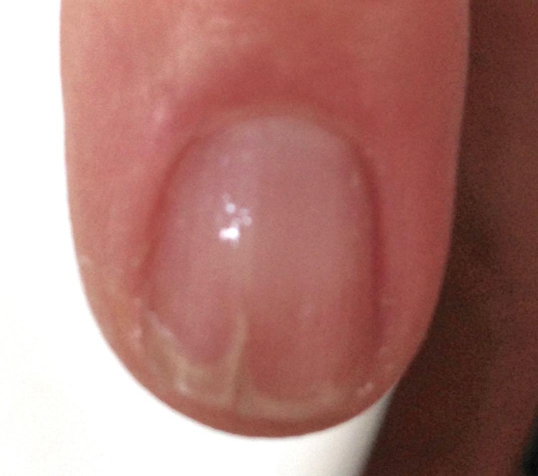 finger-nagelpilz-jenncosmetic-3
