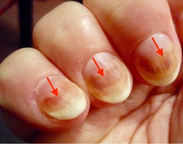 finger-nagelpilz-jenncosmetic-6