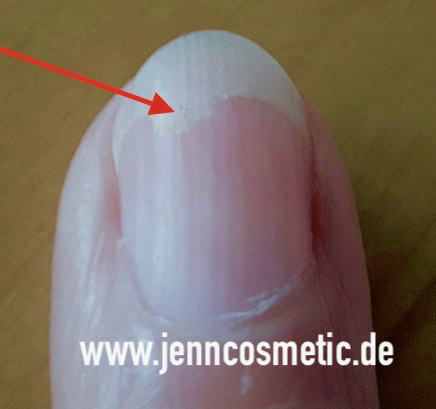 finger-nagelpilz-jenncosmetic-7
