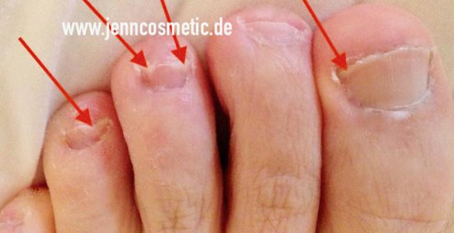 Fußnagelpilz -bilder-03-jenncosmetic