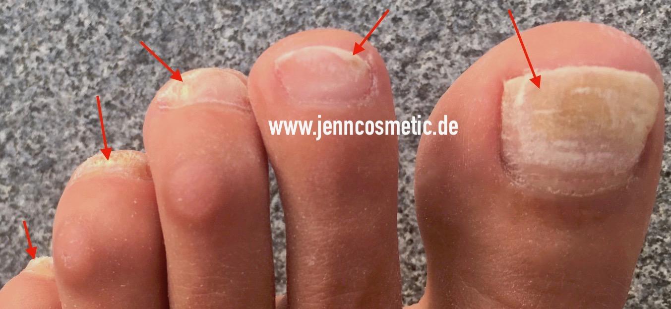 Fußnagel-krankheiten-bilder-6